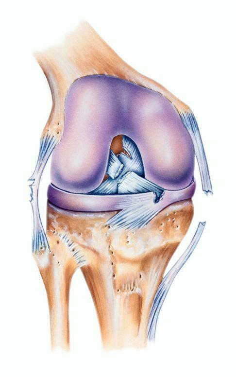 Операция на коленном суставе связки минск лечение суставом медом с прополисом