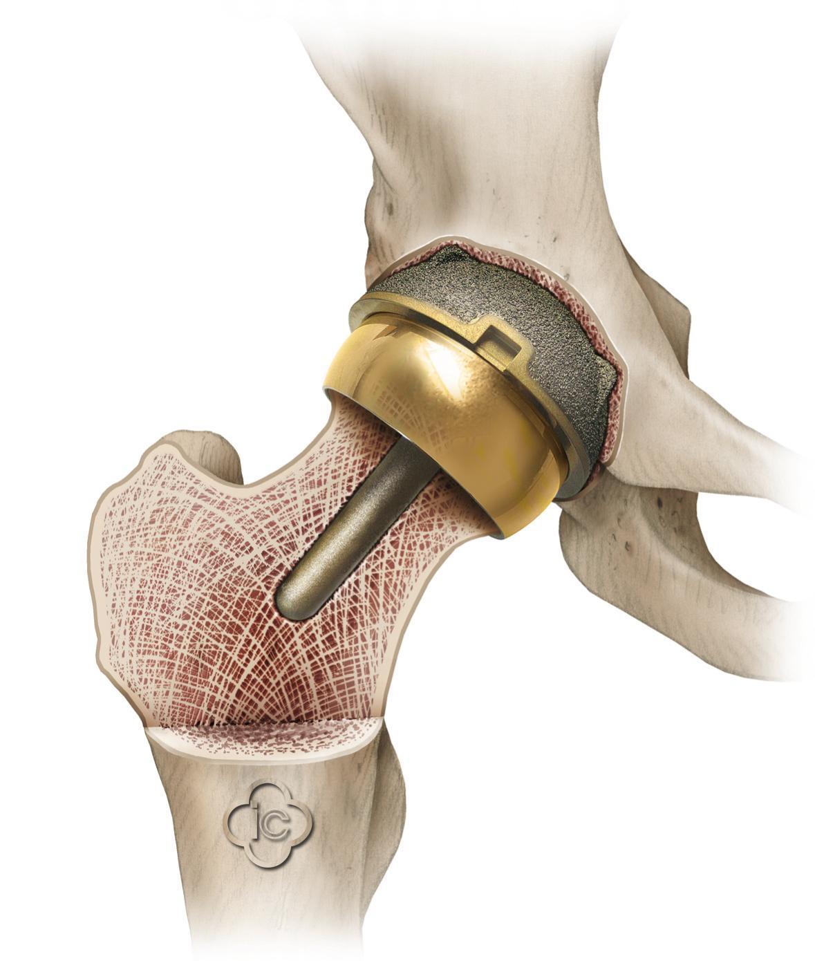Частичная замена тазобедренного сустава мениск в коленном суставе