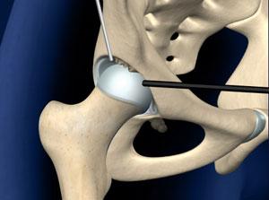 Артороскопия тазобедренного сустава имплантация коленного сустава wtys
