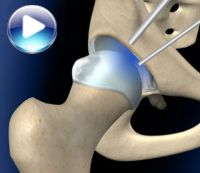 Операция по сохранению тазобедренного сустава растяжение связок плечевого сустава фото