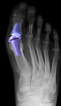 Протезирование плюснефалангового сустава операция по замене сустава колена цена