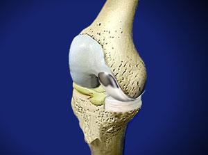 Частичное протезирование сустава массаж при восстановлении тазобедренного сустава
