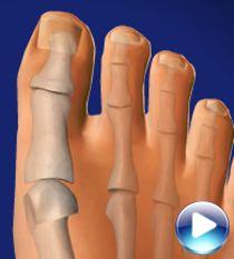 Мозоль на косточке пальца ноги