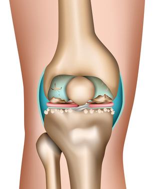 Лечение артроза коленного сустава: Аутологичная трансплантация хондроцитов