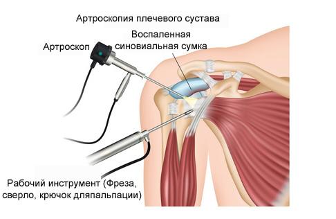 Лечебная мазь при артрозе